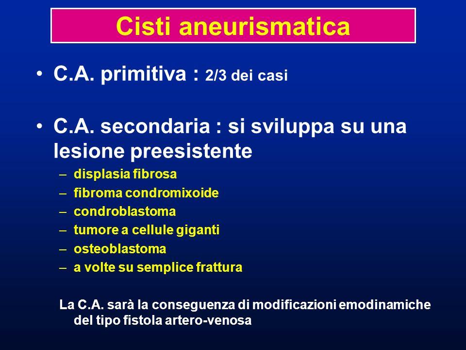 C.A. primitiva : 2/3 dei casi C.A. secondaria : si sviluppa su una lesione preesistente –displasia fibrosa –fibroma condromixoide –condroblastoma –tum