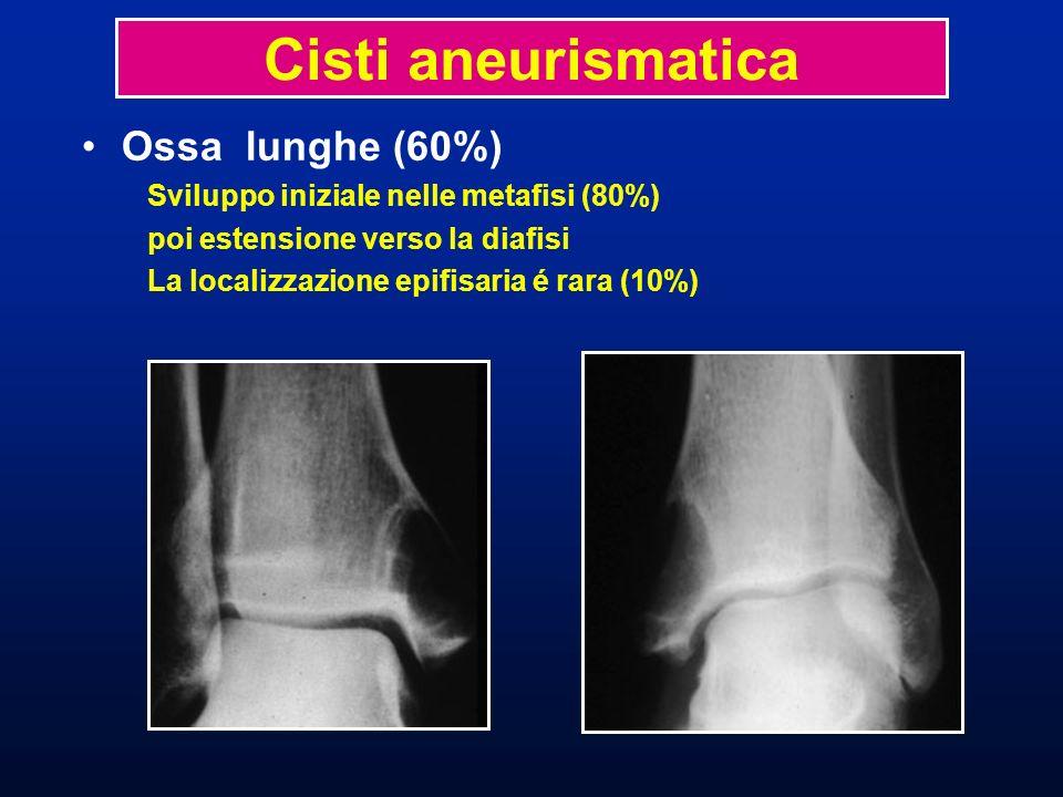 Cisti aneurismatica Displasia fibrosa Diagnosi differenziale