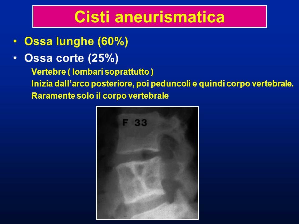 Ossa lunghe (60%) Ossa corte (25%) Cisti aneurismatica