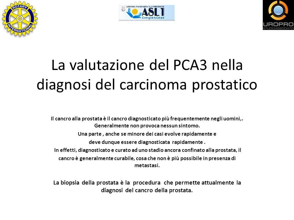 La valutazione del PCA3 nella diagnosi del carcinoma prostatico Il cancro alla prostata è il cancro diagnosticato più frequentemente negli uomini,. Ge