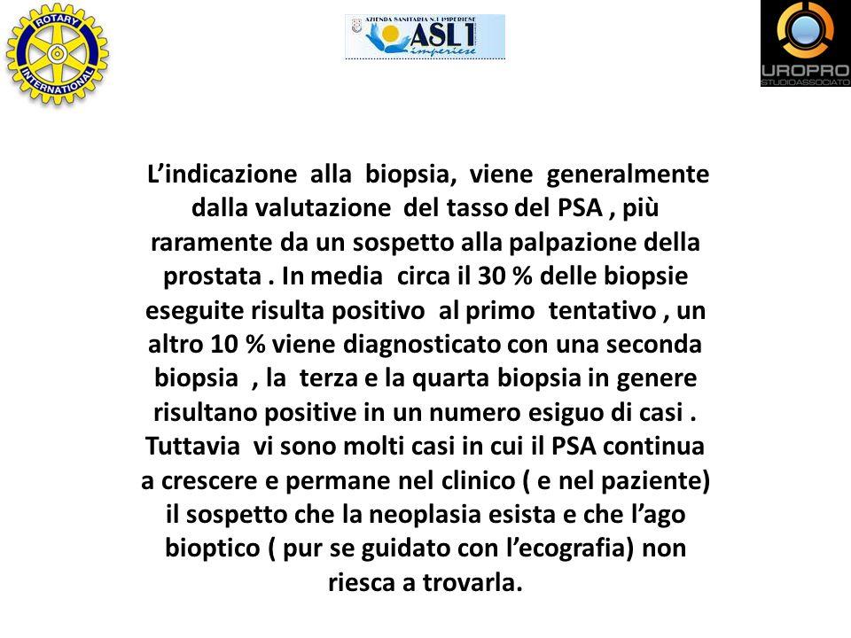 Lindicazione alla biopsia, viene generalmente dalla valutazione del tasso del PSA, più raramente da un sospetto alla palpazione della prostata. In med