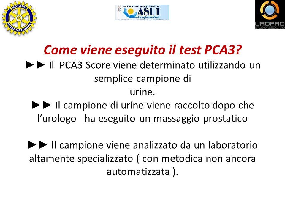 Come viene eseguito il test PCA3? Il PCA3 Score viene determinato utilizzando un semplice campione di urine. Il campione di urine viene raccolto dopo