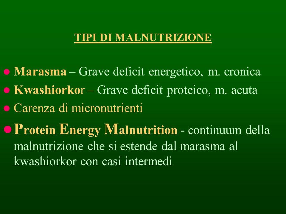 TIPI DI MALNUTRIZIONE Marasma – Grave deficit energetico, m. cronica Kwashiorkor – Grave deficit proteico, m. acuta Carenza di micronutrienti P rotein