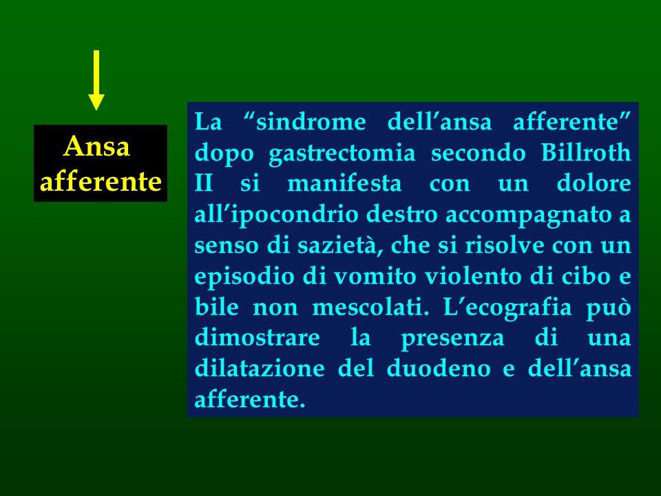 Ansa afferente La sindrome dellansa afferente dopo gastrectomia secondo Billroth II si manifesta con un dolore allipocondrio destro accompagnato a sen