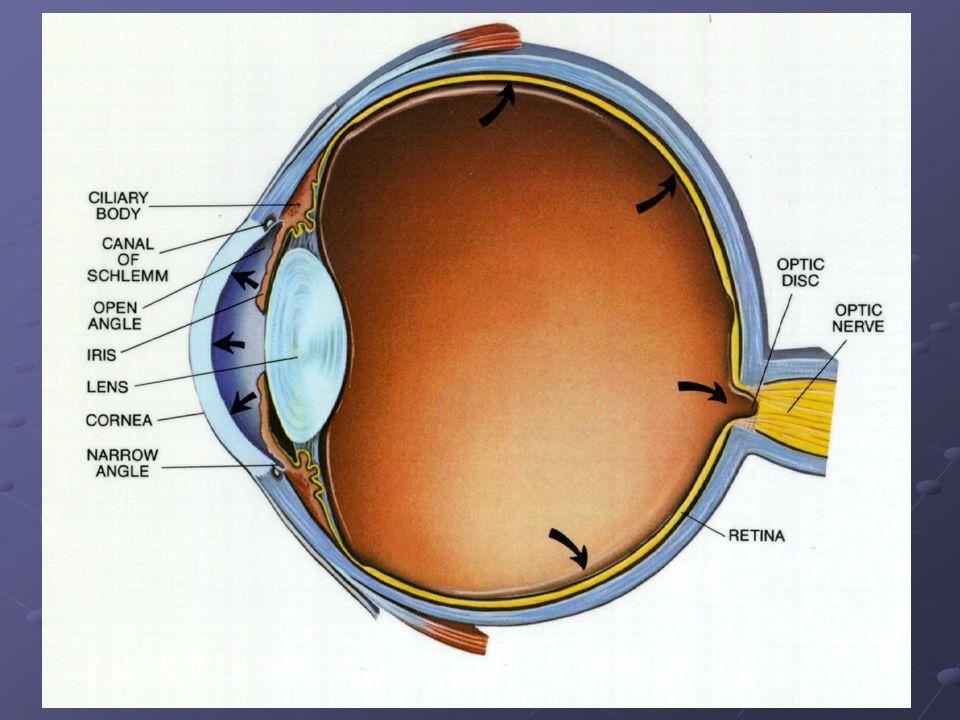 DIAGNOSI INFERMIERISTICA GLAUCOMA ACUTO dolore dentro e attorno agli occhi causato dallaumento della pressione intraoculare.