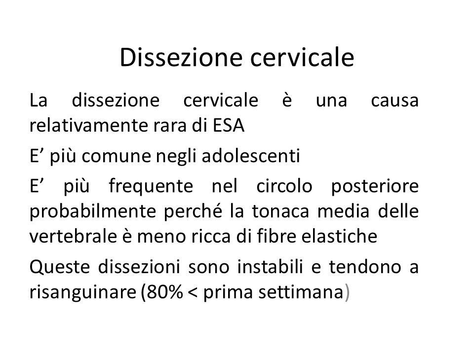 Dissezione cervicale La dissezione cervicale è una causa relativamente rara di ESA E più comune negli adolescenti E più frequente nel circolo posterio