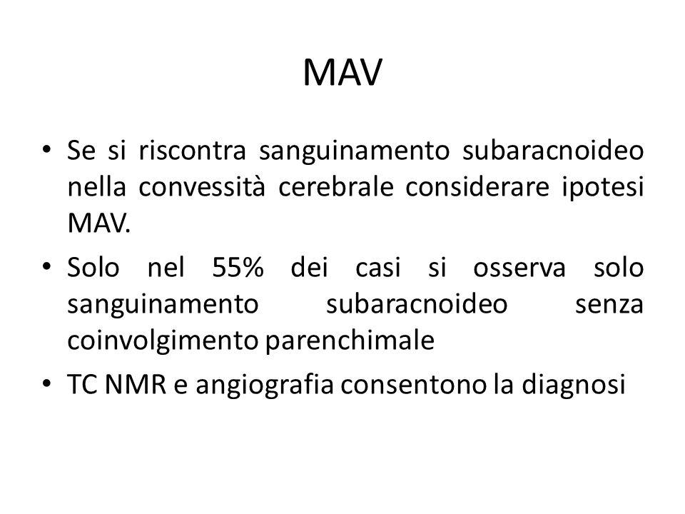 MAV Se si riscontra sanguinamento subaracnoideo nella convessità cerebrale considerare ipotesi MAV. Solo nel 55% dei casi si osserva solo sanguinament