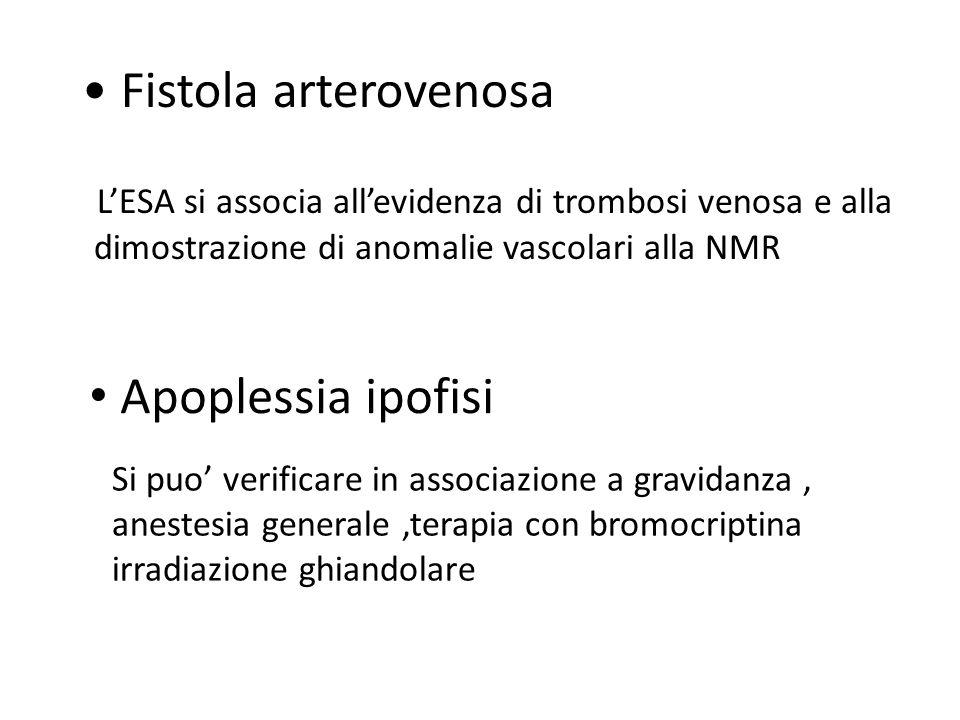 Fistola arterovenosa LESA si associa allevidenza di trombosi venosa e alla dimostrazione di anomalie vascolari alla NMR Apoplessia ipofisi Si puo veri