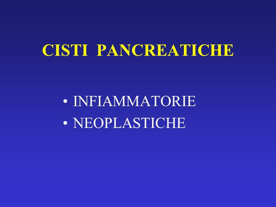Pseudocisti del pancreas Drenaggio EUS-guidato