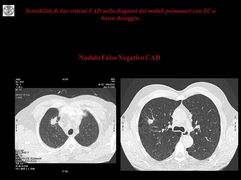 Sensibilità di due sistemi CAD nella diagnosi dei noduli polmonari con TC a basso dosaggio. Nodulo Falso Negativo CAD