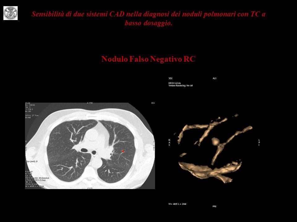 Sensibilità di due sistemi CAD nella diagnosi dei noduli polmonari con TC a basso dosaggio. Nodulo Falso Negativo RC