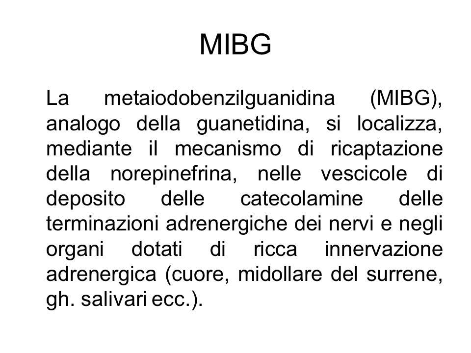 MIBG La metaiodobenzilguanidina (MIBG), analogo della guanetidina, si localizza, mediante il mecanismo di ricaptazione della norepinefrina, nelle vesc