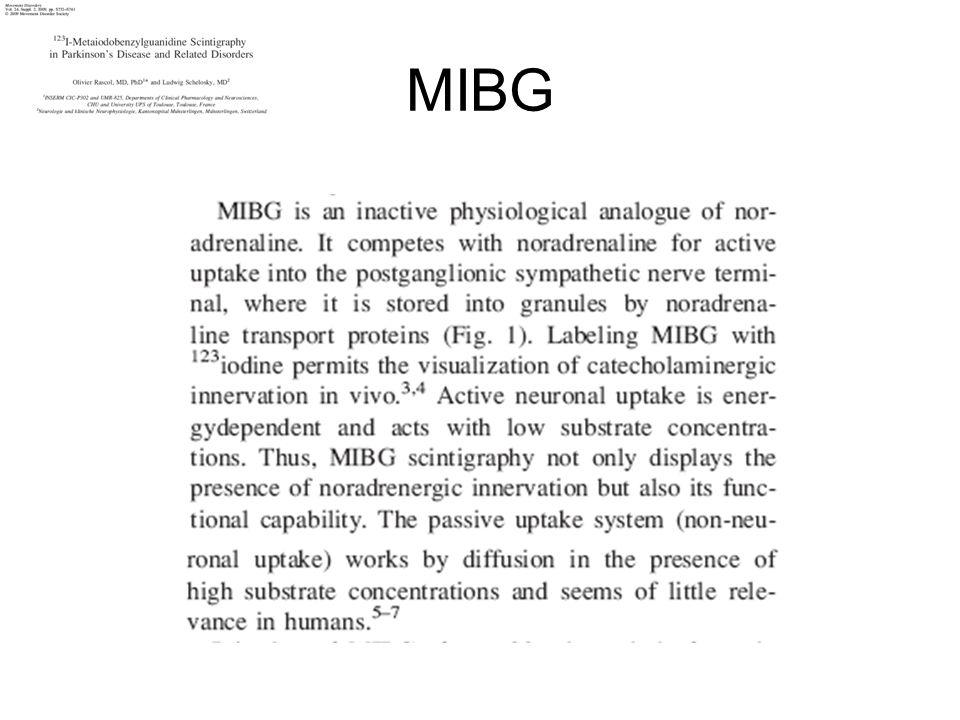 Indicazioni allesecuzione della scintigrafia con MIBG in neurologia - diagnosi differenziale tra Parkinson (assente captazione precoce e tardiva della MIBG) e Parkinsonismi atipici (MSA buona captazione della MIBG sia precoce che tardiva, PSP buona captazione della MIBG in fase precoce e meno buona tardivamente).