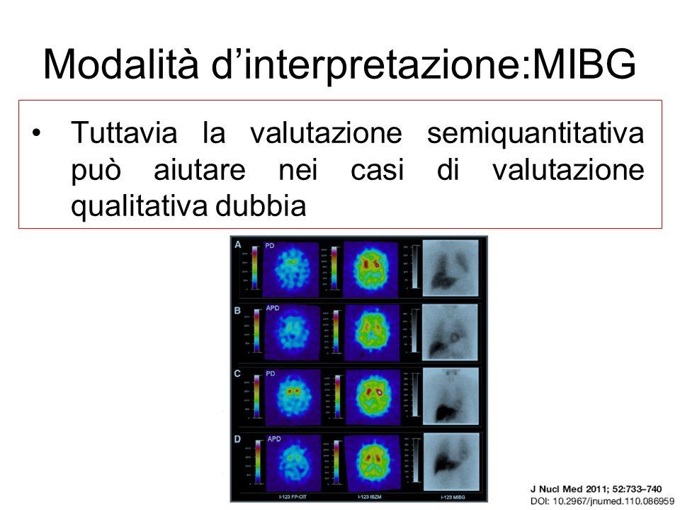 Modalità dinterpretazione:MIBG Tuttavia la valutazione semiquantitativa può aiutare nei casi di valutazione qualitativa dubbia