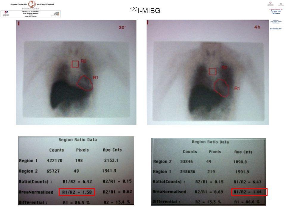 MP: Malattia di Parkinson ; PAF: Pure Autonomic Failure; MSA: Multi Systemic Atrophy; DLB: Lewy Body Dementia; AD: Alzheimer Disease 123I- CIT 18F-DOPA 123I-IBZM 11C-Raclopride