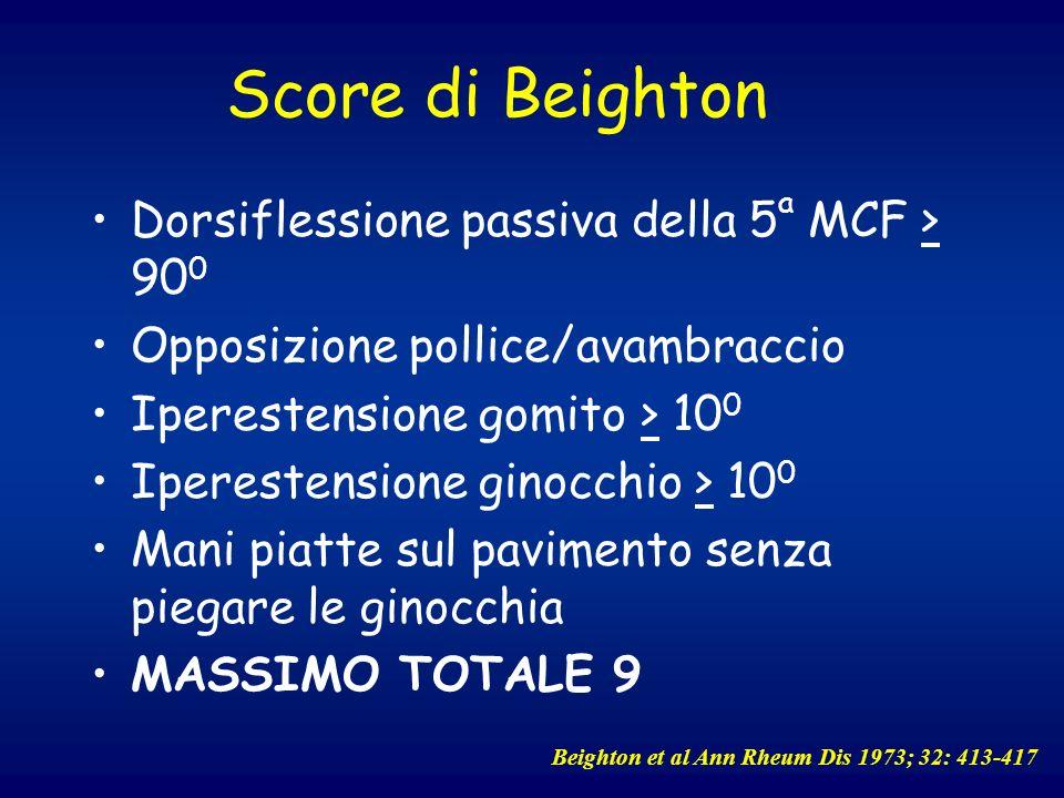 Score di Beighton Dorsiflessione passiva della 5 a MCF > 90 0 Opposizione pollice/avambraccio Iperestensione gomito > 10 0 Iperestensione ginocchio >