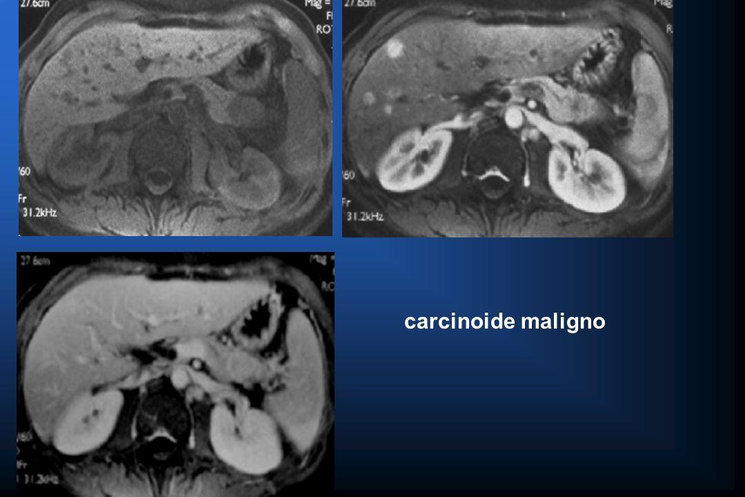 carcinoide maligno