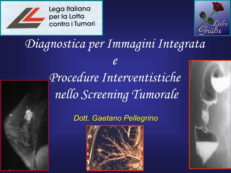 Diagnostica per Immagini Integrata e Procedure Interventistiche nello Screening Tumorale Dott. Gaetano Pellegrino