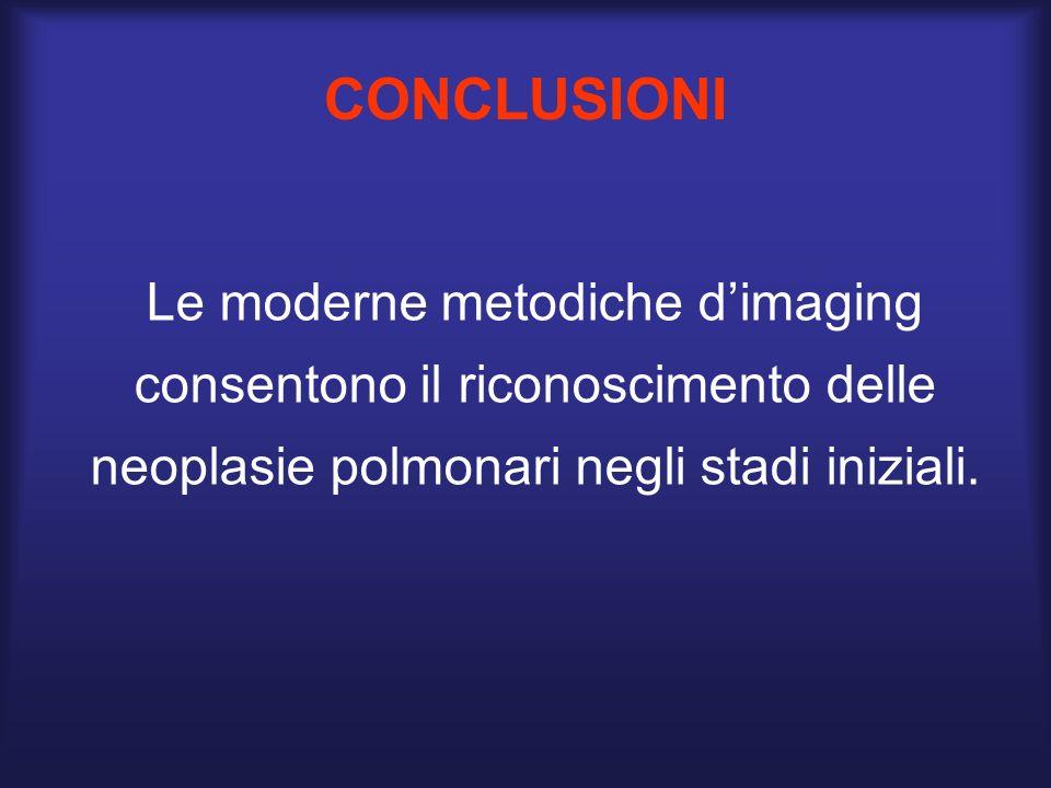 CONCLUSIONI Le moderne metodiche dimaging consentono il riconoscimento delle neoplasie polmonari negli stadi iniziali.