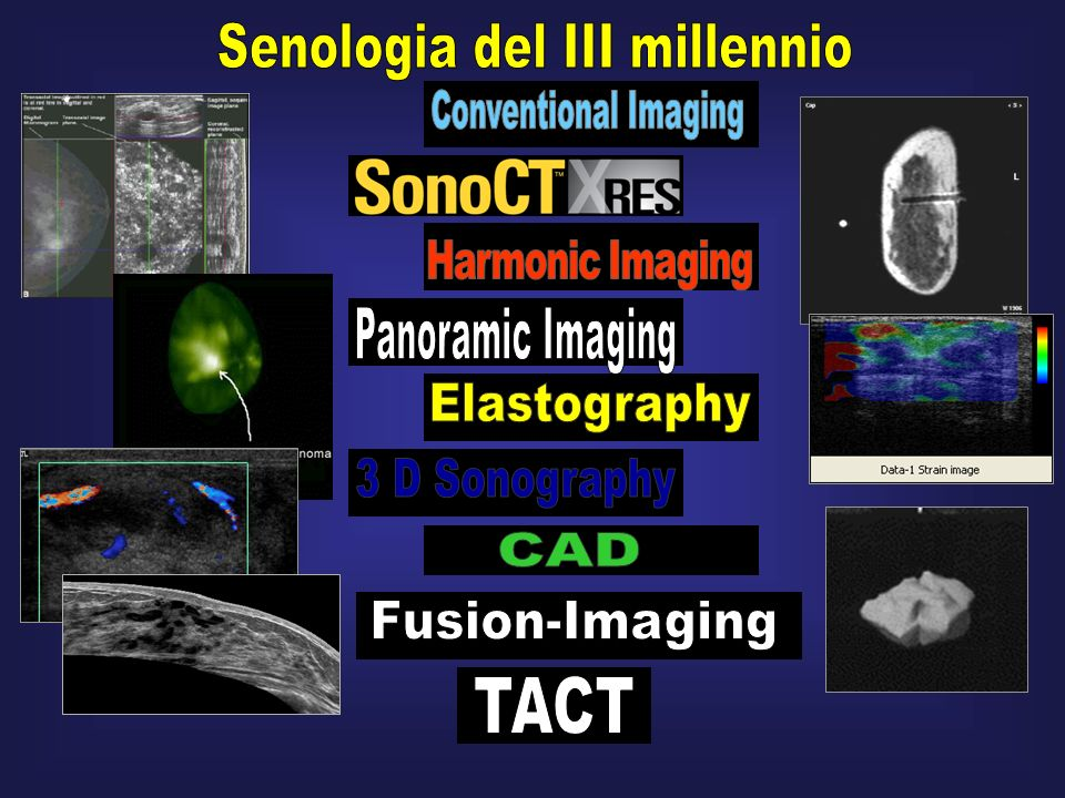 Imaging dei tumori del retto