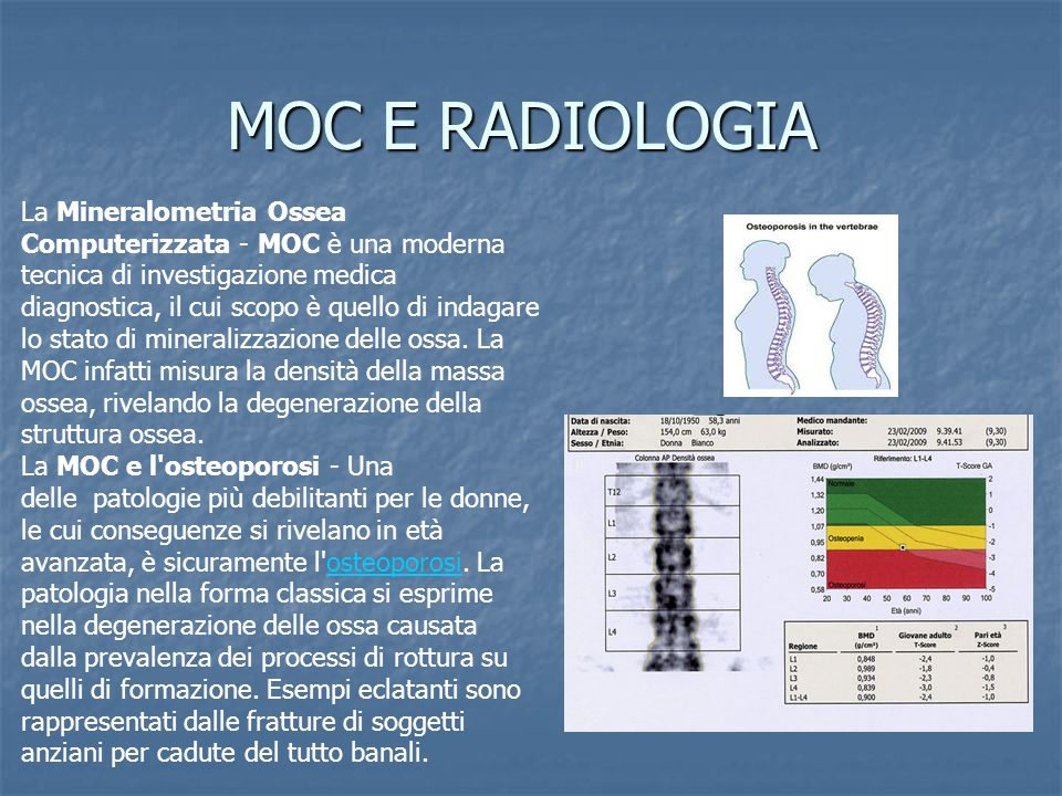 MOC E RADIOLOGIA La Mineralometria Ossea Computerizzata - MOC è una moderna tecnica di investigazione medica diagnostica, il cui scopo è quello di ind