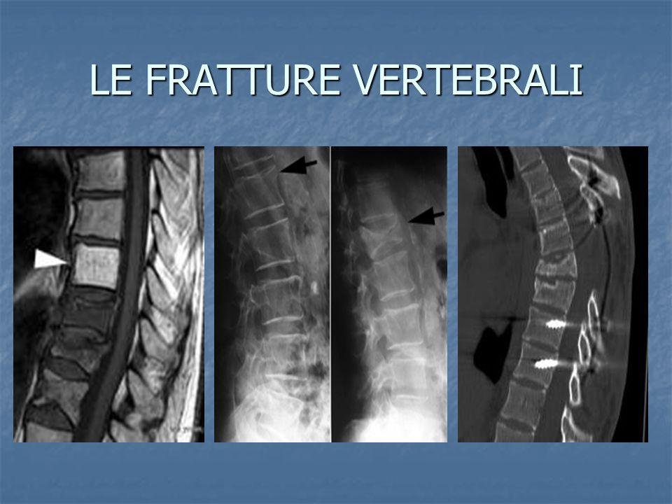 LE LOMBALGIE ACUTE E CRONICHE La lombalgia (mal di schiena), rappresenta un problema molto diffuso.