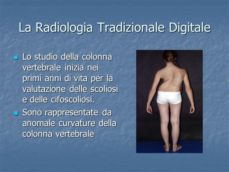 La Radiologia Tradizionale Digitale Lo studio della colonna vertebrale inizia nei primi anni di vita per la valutazione delle scoliosi e delle cifosco