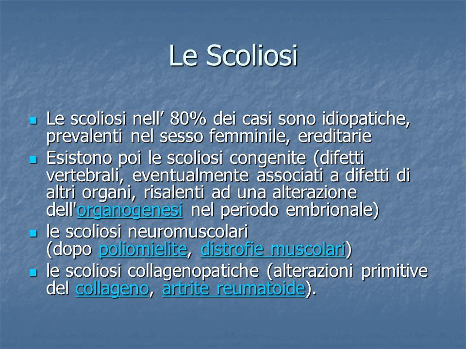 Le Scoliosi Le scoliosi nell 80% dei casi sono idiopatiche, prevalenti nel sesso femminile, ereditarie Le scoliosi nell 80% dei casi sono idiopatiche,