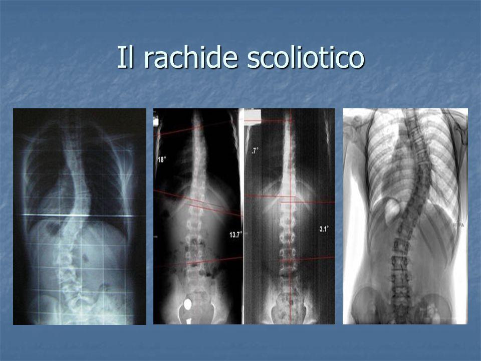 Le Spondilo-Artrosi La spondiloartrosi è l artrosi delle articolazioni della colonna vertebrale.