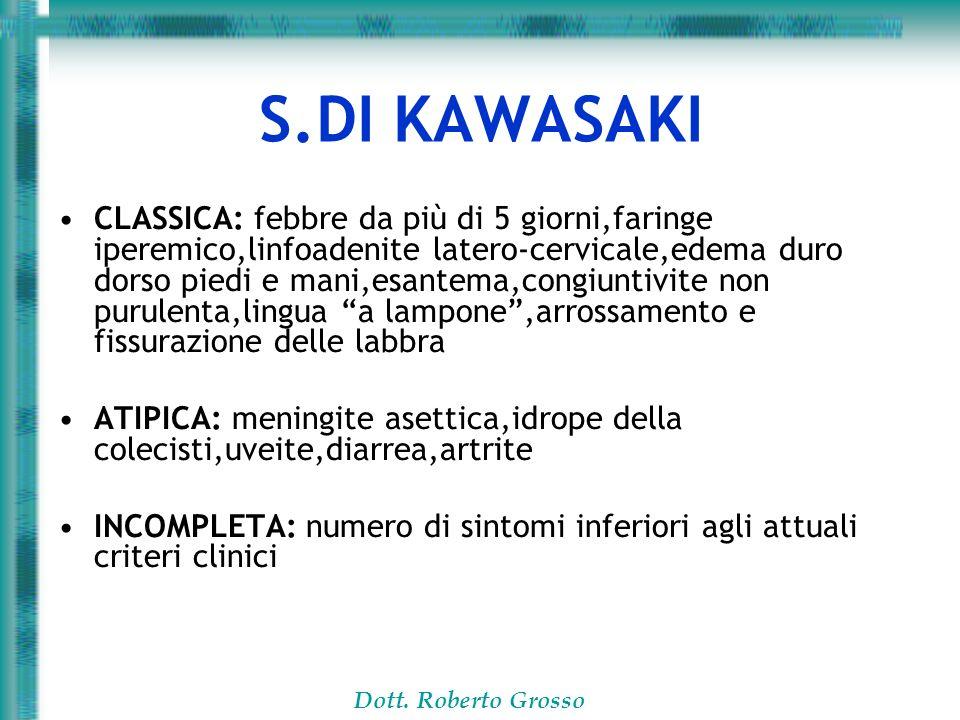 Dott. Roberto Grosso S.DI KAWASAKI CLASSICA: febbre da più di 5 giorni,faringe iperemico,linfoadenite latero-cervicale,edema duro dorso piedi e mani,e