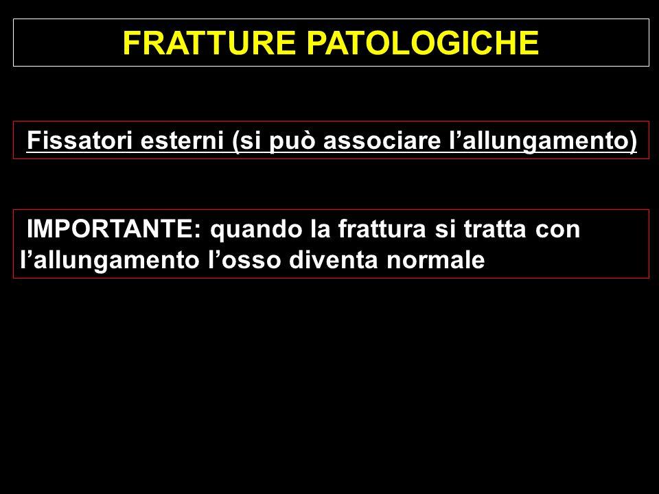 FRATTURE PATOLOGICHE Fissatori esterni (si può associare lallungamento) IMPORTANTE: quando la frattura si tratta con lallungamento losso diventa norma