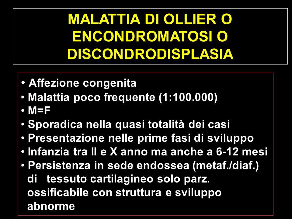 MALATTIA DI OLLIER O ENCONDROMATOSI O DISCONDRODISPLASIA Affezione congenita Malattia poco frequente (1:100.000) M=F Sporadica nella quasi totalità de