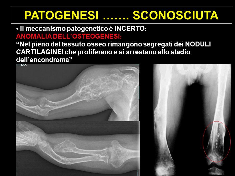 PATOGENESI ……. SCONOSCIUTA Il meccanismo patogenetico è INCERTO : ANOMALIA DELLOSTEOGENESI : Nel pieno del tessuto osseo rimangono segregati dei NODUL