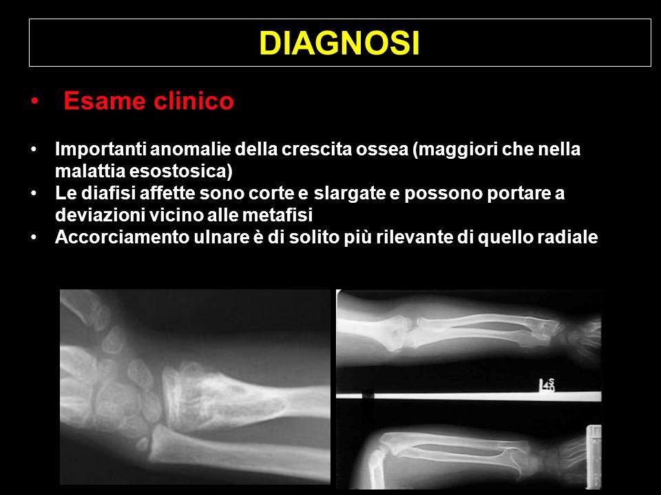 DIAGNOSI Esame clinico Importanti anomalie della crescita ossea (maggiori che nella malattia esostosica) Le diafisi affette sono corte e slargate e po