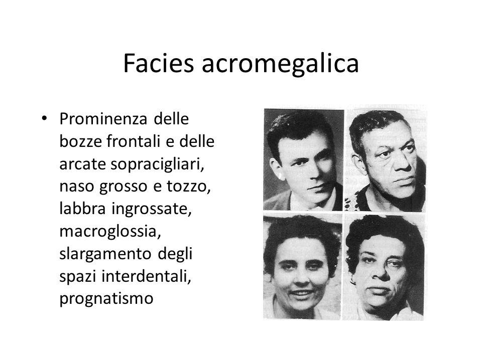Facies acromegalica Prominenza delle bozze frontali e delle arcate sopracigliari, naso grosso e tozzo, labbra ingrossate, macroglossia, slargamento de