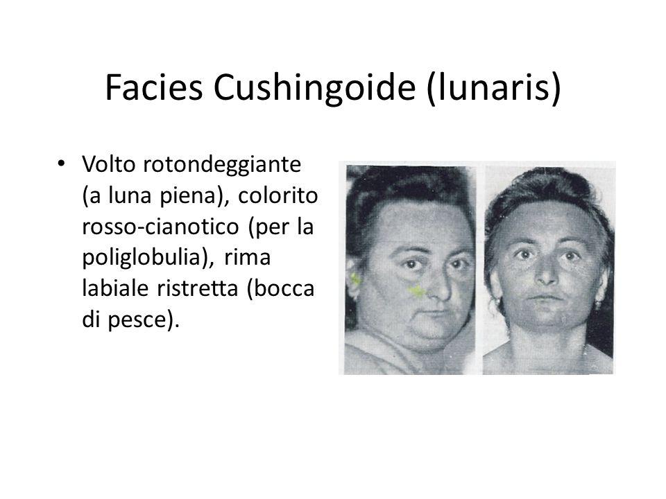 Facies Cushingoide (lunaris) Volto rotondeggiante (a luna piena), colorito rosso-cianotico (per la poliglobulia), rima labiale ristretta (bocca di pes