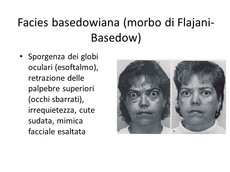 Facies basedowiana (morbo di Flajani- Basedow) Sporgenza dei globi oculari (esoftalmo), retrazione delle palpebre superiori (occhi sbarrati), irrequie