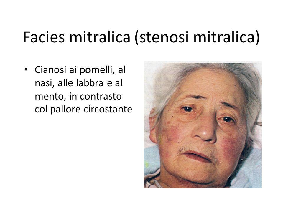 Facies mitralica (stenosi mitralica) Cianosi ai pomelli, al nasi, alle labbra e al mento, in contrasto col pallore circostante