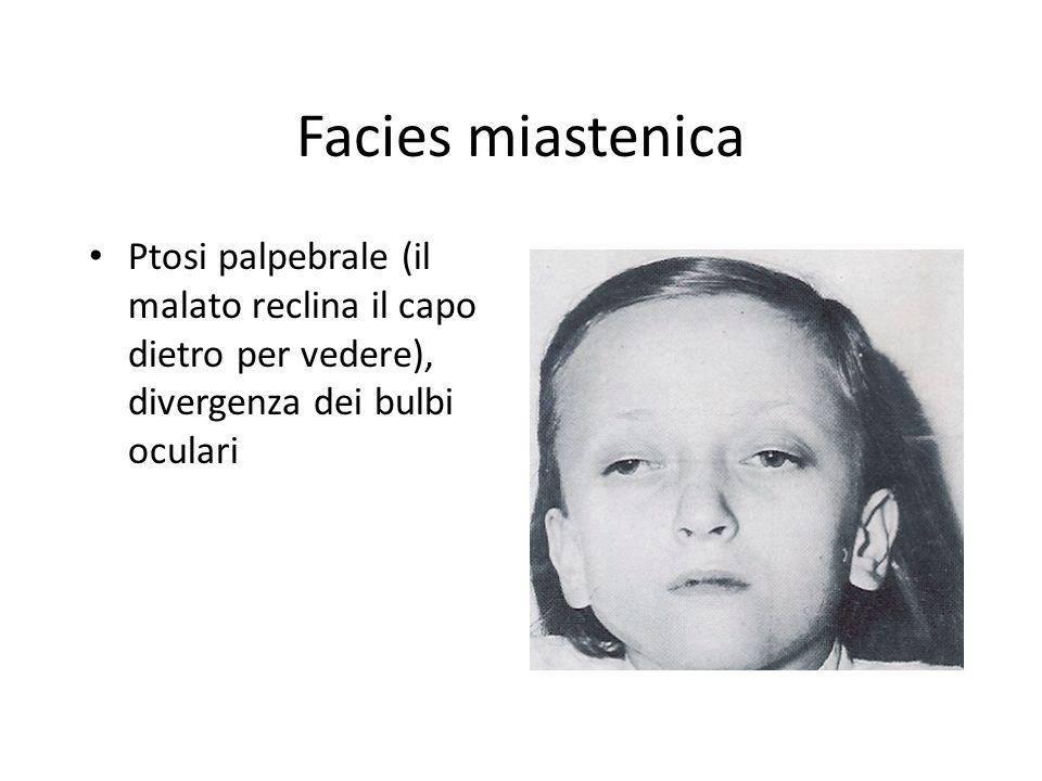 Facies miastenica Ptosi palpebrale (il malato reclina il capo dietro per vedere), divergenza dei bulbi oculari