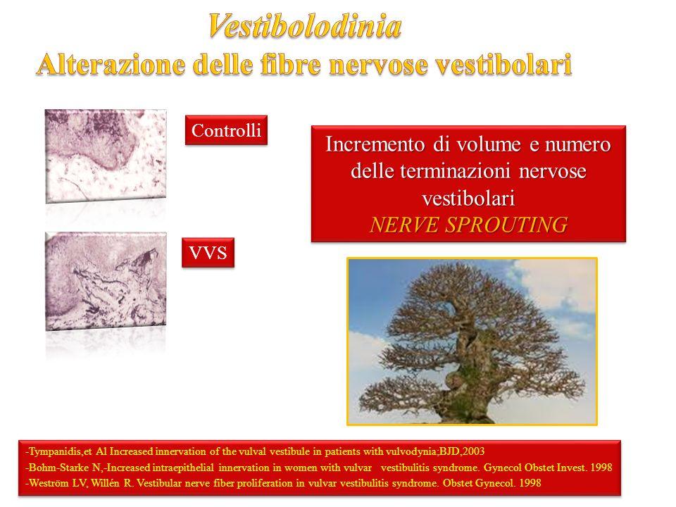 Incremento di volume e numero delle terminazioni nervose vestibolari NERVE SPROUTING Incremento di volume e numero delle terminazioni nervose vestibolari NERVE SPROUTING -Tympanidis,et Al Increased innervation of the vulval vestibule in patients with vulvodynia;BJD,2003 -Bohm-Starke N,-Increased intraepithelial innervation in women with vulvar vestibulitis syndrome.