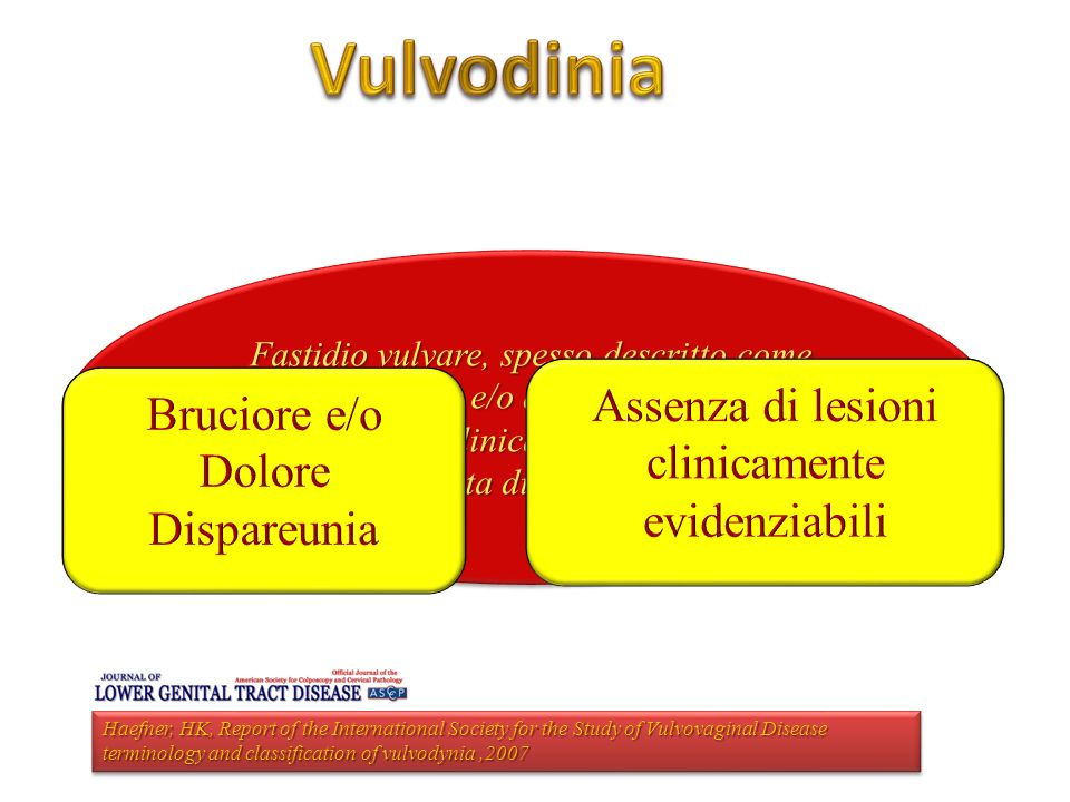 Utilizzo di un preparato enzimatico (Wobenzym Vital) nella terapia della Vestibolodinia associata a Sindrome della vescica dolorosa: Studio Pilota 40 Pazienti VESTIBOLODINIA+PBS Gruppo A - Tens+Amitriptilina+Pregabalina -Wobenzim vital Gruppo B - Tens+Amitriptilina+Pregabalina