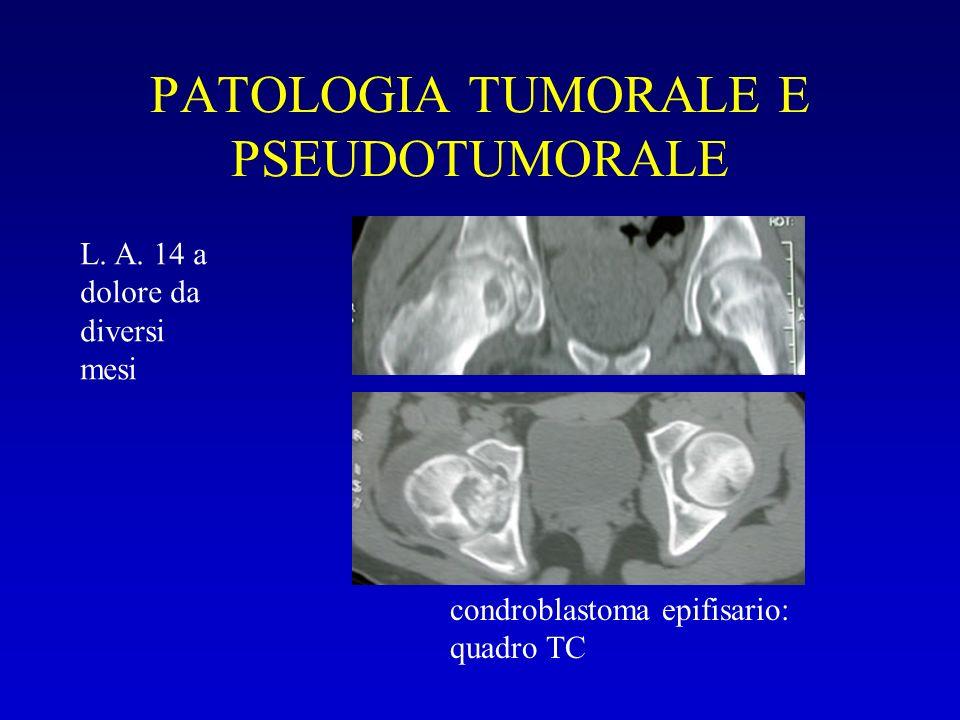 PATOLOGIA TUMORALE E PSEUDOTUMORALE condroblastoma epifisario: quadro TC L. A. 14 a dolore da diversi mesi