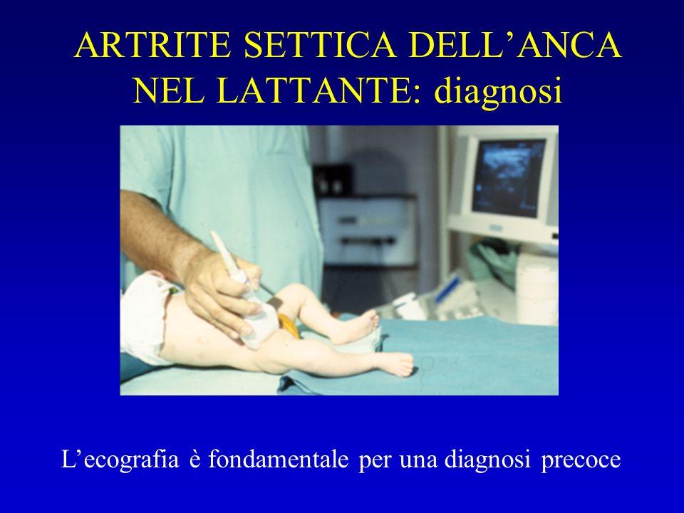 ARTRITE SETTICA DELLANCA NEL LATTANTE: diagnosi Lecografia è fondamentale per una diagnosi precoce
