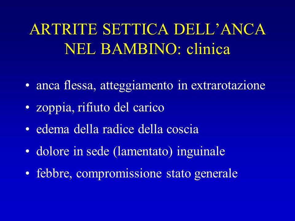 ARTRITE SETTICA DELLANCA NEL BAMBINO: clinica anca flessa, atteggiamento in extrarotazione zoppia, rifiuto del carico edema della radice della coscia