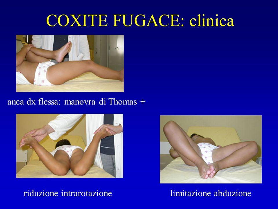 COXITE FUGACE: clinica anca dx flessa: manovra di Thomas + riduzione intrarotazionelimitazione abduzione