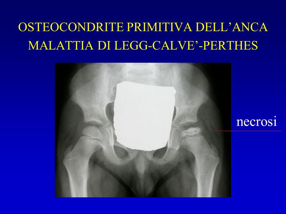 OSTEOCONDRITE PRIMITIVA DELLANCA MALATTIA DI LEGG-CALVE-PERTHES necrosi