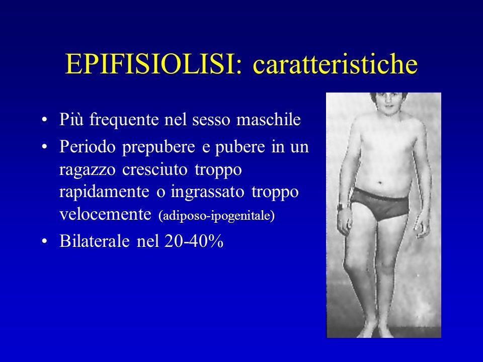 EPIFISIOLISI: caratteristiche Più frequente nel sesso maschile Periodo prepubere e pubere in un ragazzo cresciuto troppo rapidamente o ingrassato trop