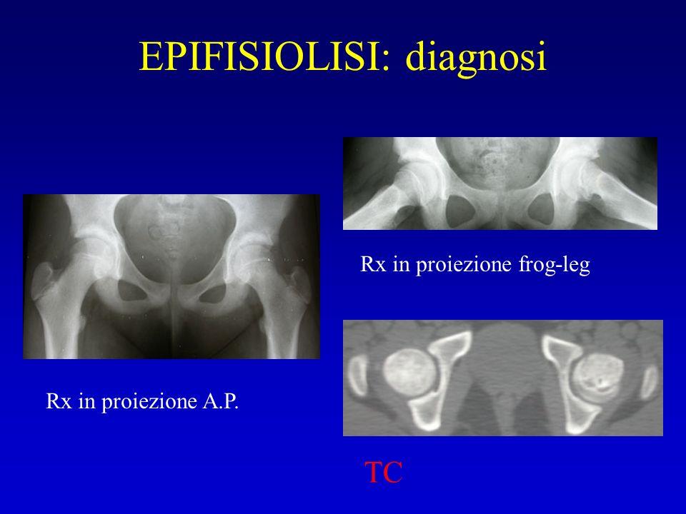 EPIFISIOLISI: diagnosi Rx in proiezione frog-leg TC Rx in proiezione A.P.