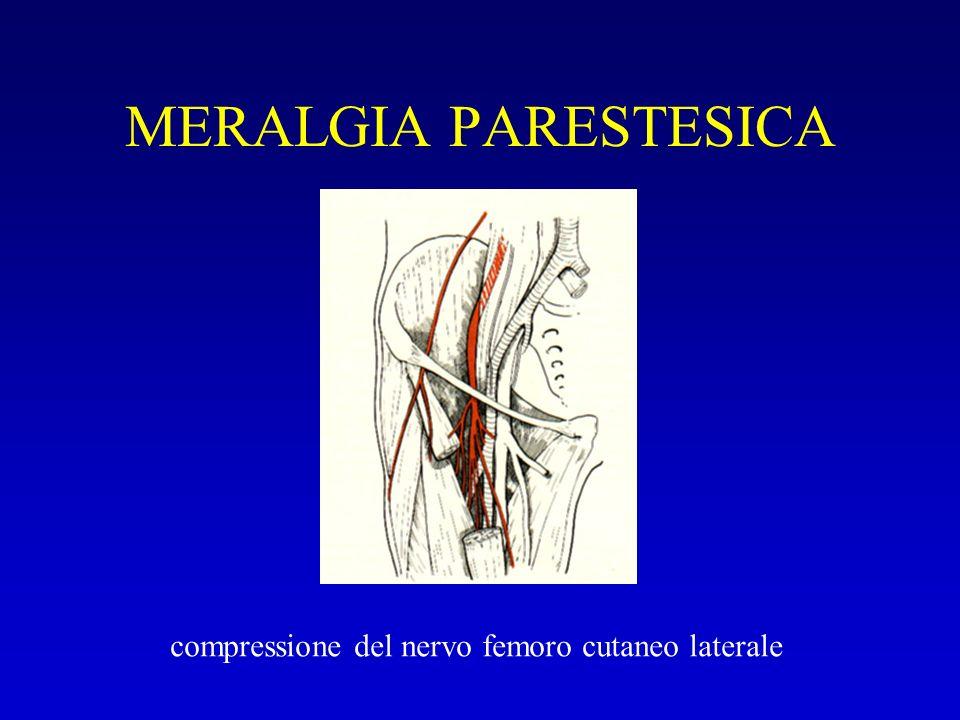 MERALGIA PARESTESICA compressione del nervo femoro cutaneo laterale