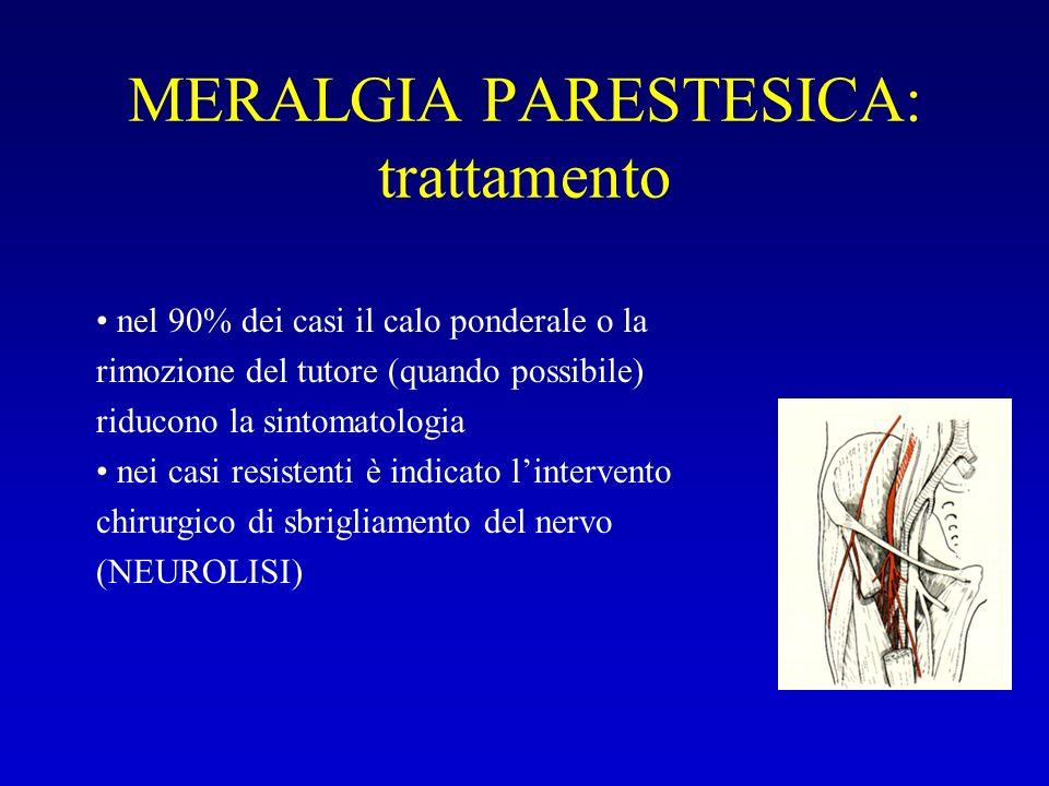 MERALGIA PARESTESICA: trattamento nel 90% dei casi il calo ponderale o la rimozione del tutore (quando possibile) riducono la sintomatologia nei casi